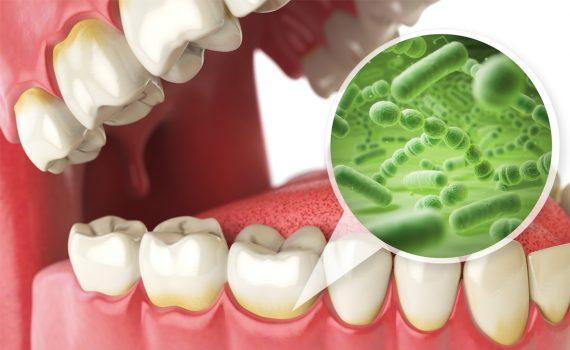 ce este parodontoza