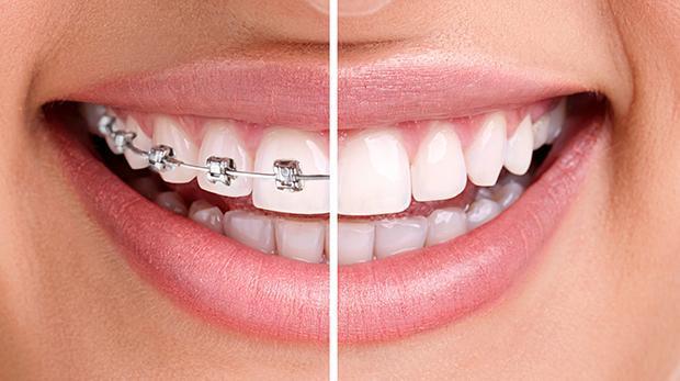 Cele mai frecvente mituri despre aparatul dentar